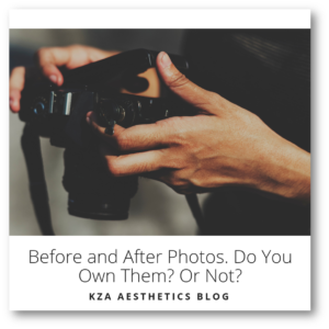 Before and After Photos. Do You Own Them? Or Not?